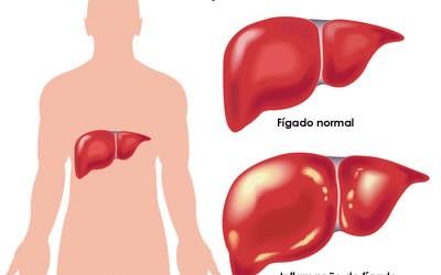 Petrópolis é o único município da Região Serrana a receber novo tratamento para Hepatite C